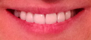 Before Crest Whitestrips