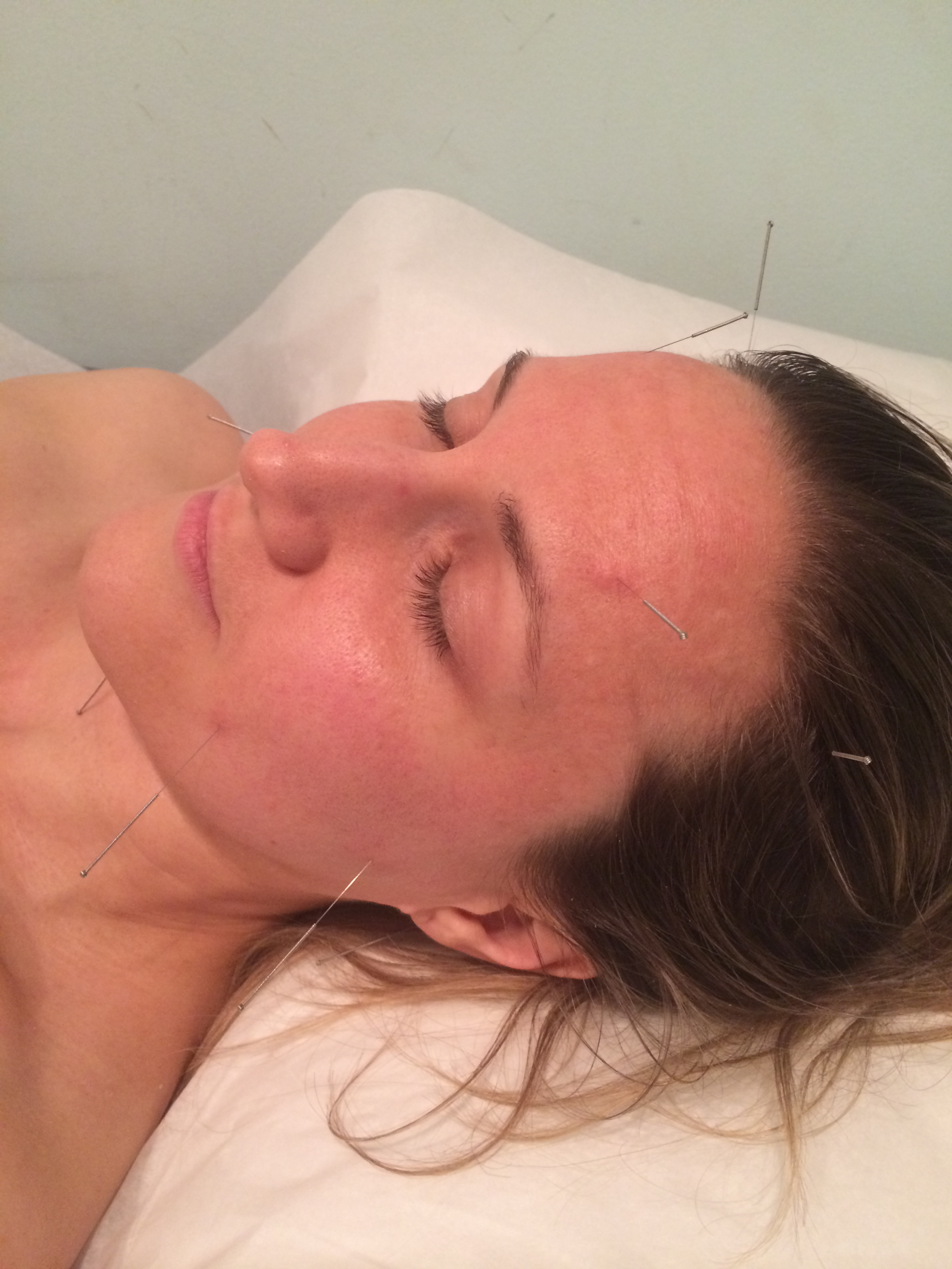 Facial accupuncture photos