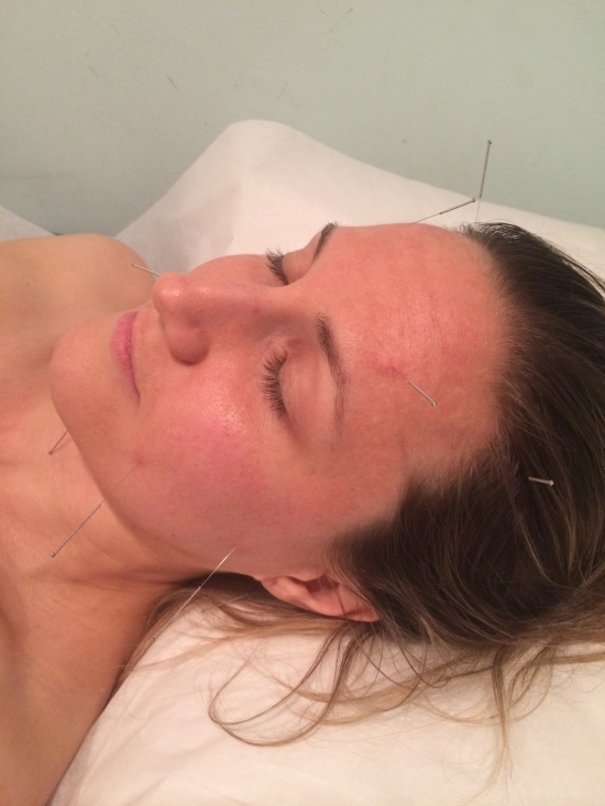 facial accupuncture